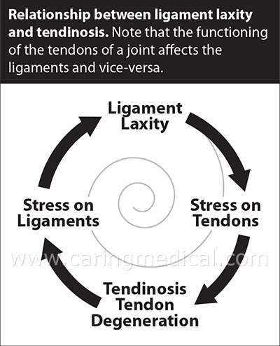 ligament-laxity-tendinosis-cycle-WEB