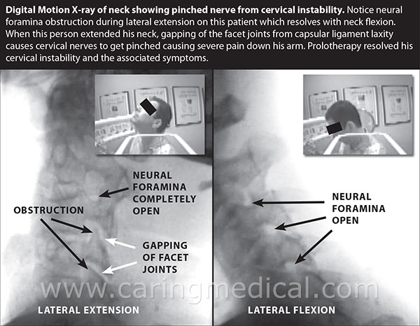 Digital motion x-ray of neck showing pinched nerve from cervical instability